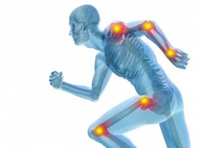 Rheumatoide Arthritis: So helfen Naturheilmittel